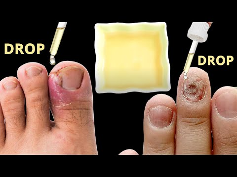 Natural Home Remedies For Toenail Fungus | Health and Beauty