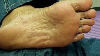 Skin peeling's typical of fungi. Tinea Pedis. Tinea Manuum. Fluconazole18 1daily Monday to Friday +