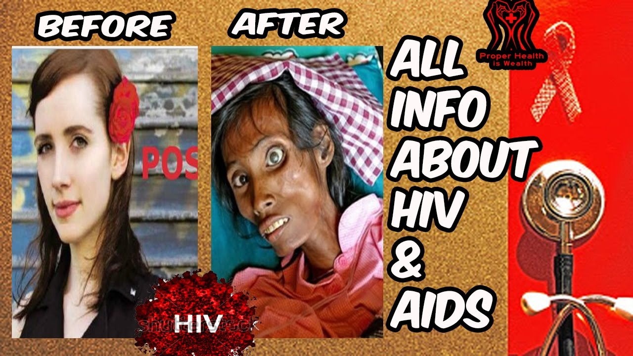 Pictures of people with aids
