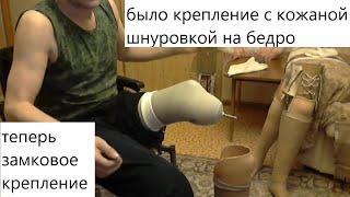 Протез голени. Почему я выбираю протез с силиконовым чехлом?