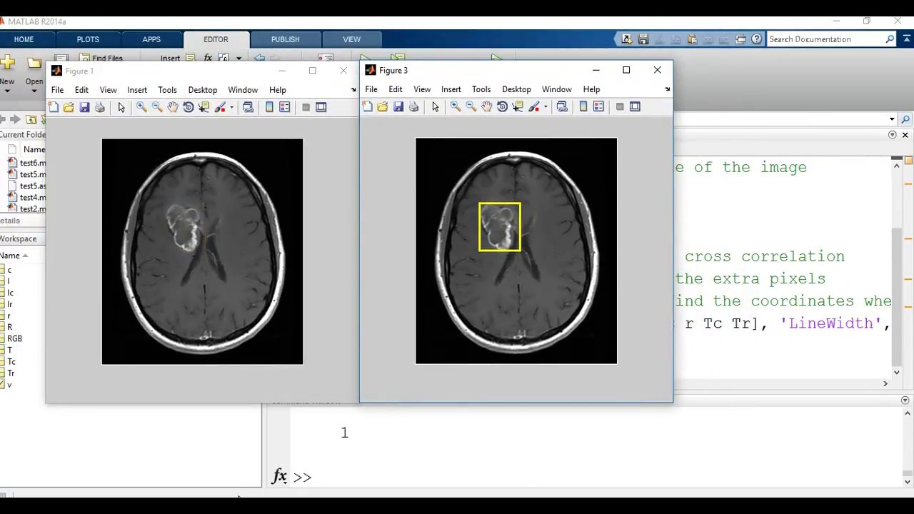 Template matching : Image processing and computer vision application in  matlab (medical application)