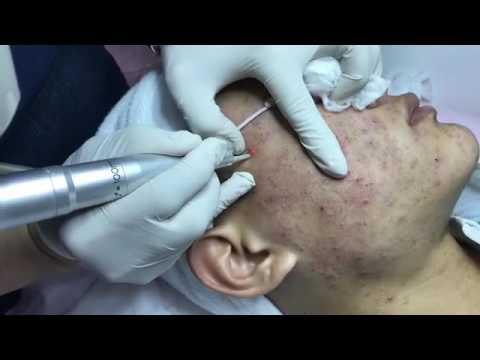 Công nghệ điều trị mụn tại thẩm mỹ viện malisa