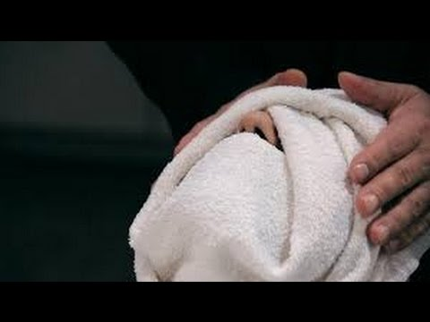 Whiteheads Home Remedies removing whiteheads - With Warm Towel