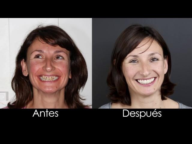 Ortodoncia Damon y blanqueamiento dental