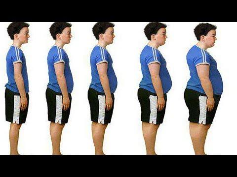 Венозная недостаточность нижних конечностей: формы