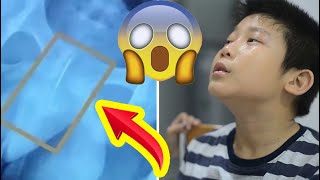 صبي يقوم بإدخال إبرة خياطة داخل مجراه البولي للبقاء مستيقظاً ! شاهد المفاجئة