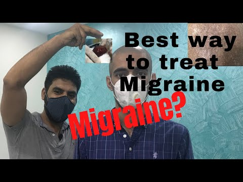 best-way-to-treat-migraine-|-headache-|-hindi-|-hijama-cupping-therapy