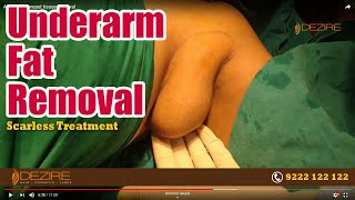 Get Rid of Underarm Fat | Scarless Treatment for Armpit Fat by Vaser Liposuction | Dezire Clinic |