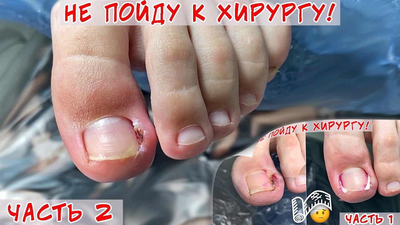Вросший ноготь / Выполняйте рекомендации по уходу за ногтями