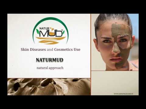 Naturmud Organic Medical Mud Therapy Mask For Body Care Healty Mud With Best Minerals