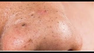 Mẹo trị mụn đầu đen vùng mũi