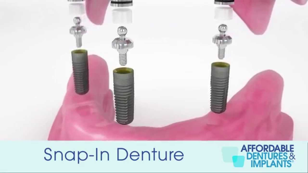 Affordable Implant Solutions | Affordable Dentures & Implants