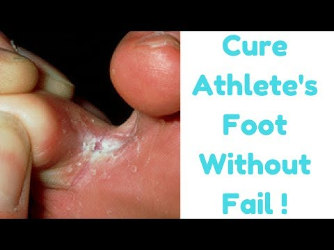 How To Get Rid Of Foot Fungus or Athlete's Foot Naturally || Cure Tiena Pedis Naturally