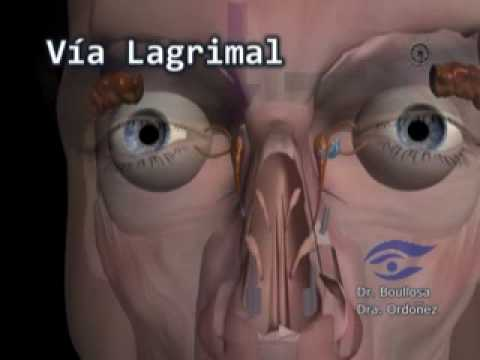 tecnica morgan para resolver el prolapso de la gl ndula lagrimal