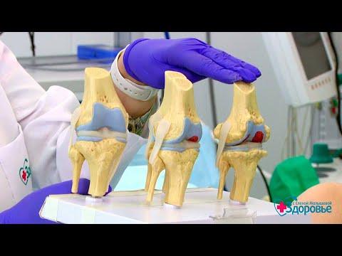 Лечение болей в суставах: что делать, чтобы вылечиться