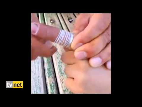 Как снять кольцо при помощи нитки