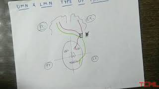Upper and lower motor neuron type of facial palsy