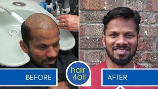 Before & After a Non-Surgical Hair Replacement System for Men/Women (Hair Loss/Baldness)