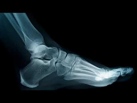 Как определить трещину в кости ноги, руки, пальца после ушиба в домашних условиях
