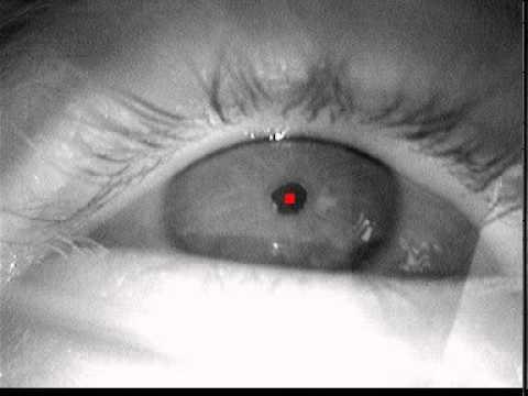 Pupil detection