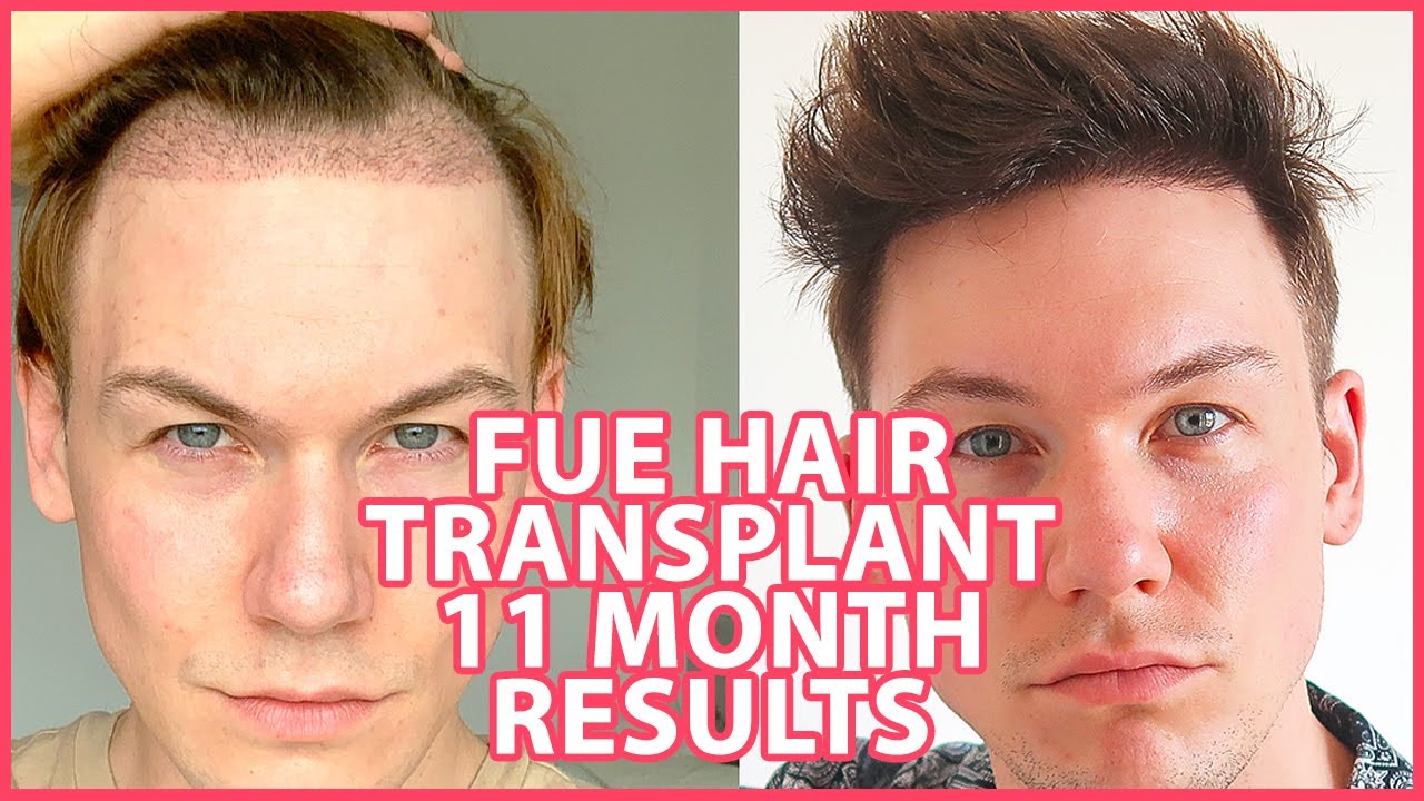 FUE Hair Transplant | Month 11 | Mesotherapy, Before & After | 2,500 Grafts | Progress Update