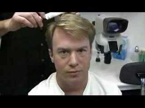 Bobman - Hair Transplant 2 Results - Hasson & Wong