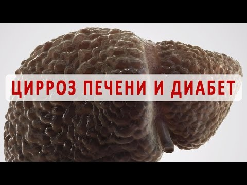 Антибиотики при циррозе печени: лечение перитонита