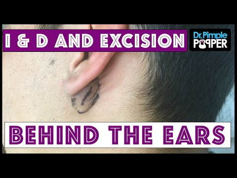 Inflamed and Non-Inflamed Cyst Removals, Behind Ears - YouTube