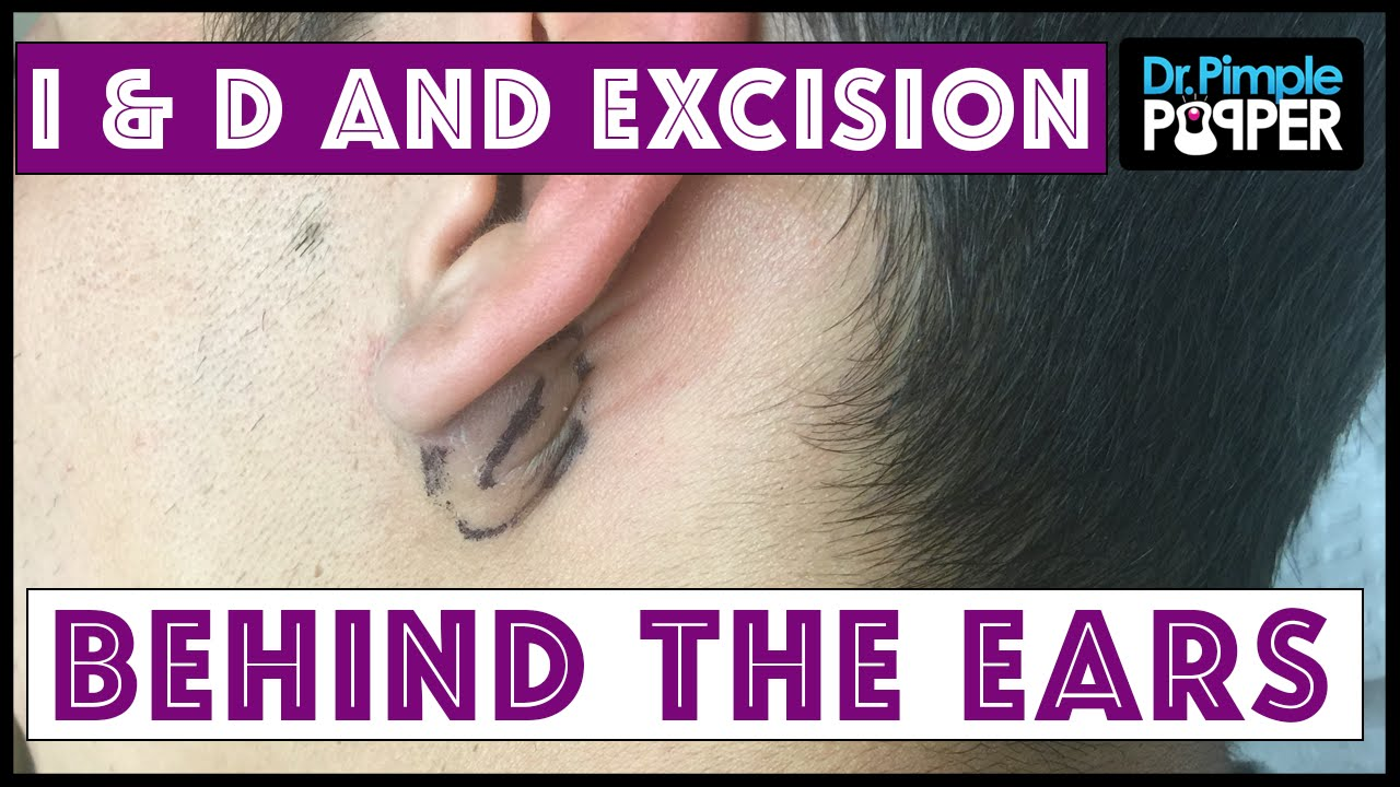 Inflamed and Non-Inflamed Cyst Removals, Behind Ears