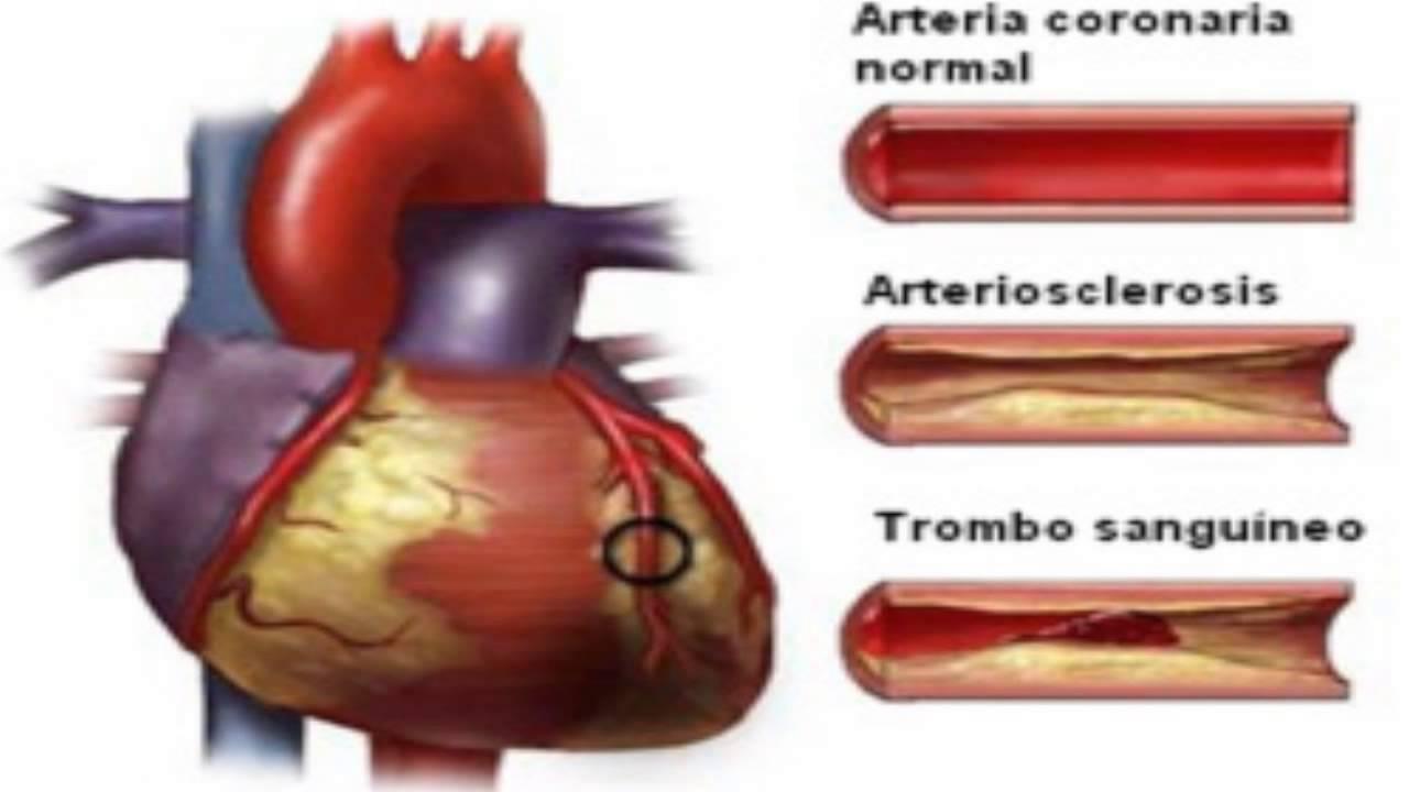 Sintomas de la Arteriosclerosis - YouTube