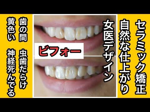 歯並びは悪くないけど死んだ神経が原因で治療