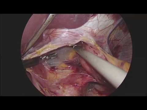 Laparoscopic nissen fundoplication (UNCUT) - February 2017