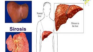 Kenali Sejak Dini Gejala Dari Penyakit Hepatitis yang Mematikan Part 01 - SAL 24/07.