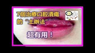 7個治療口腔潰瘍的「土辦法」,超有用!