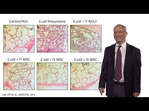Bench to Bedside: Mesenchymal Stem Cells and ARDS, Part 2 - Michael Matthay