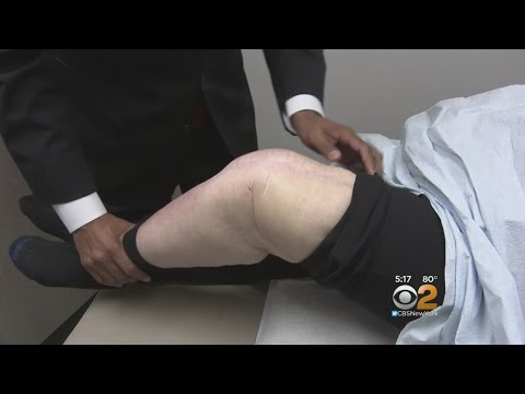 Knee Replacement Disaster