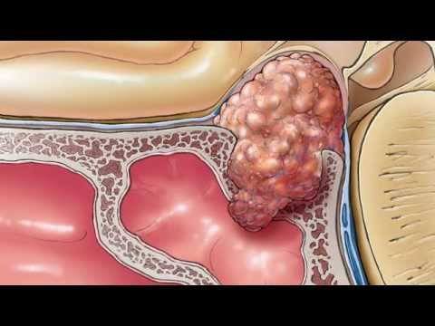 Diagnosing and Treating Pituitary Tumors - California Center for Pituitary Disorders at UCSF
