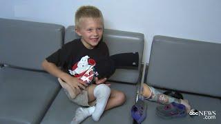 Boy Whose Prosthetic Limb Was Stolen Gets New Leg