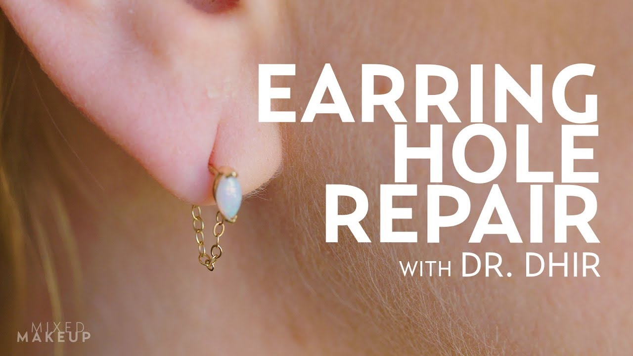Earring Hole Repair For Laura Plastic With Dr Dhir Youtube