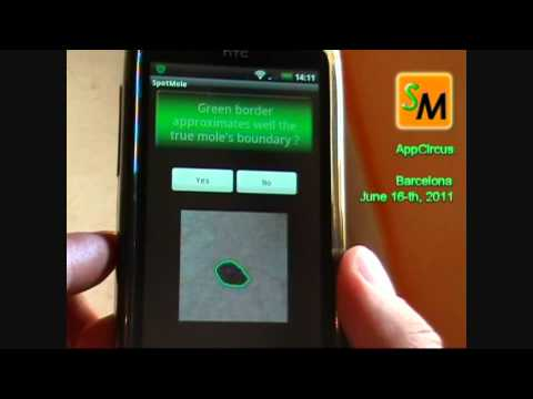 Spotmole - check skin spots and moles with your phone