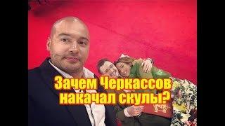Зачем Черкассов накачал скулы? Дом2 новости на 6 дней раньше (апрель 2019)