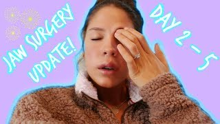 JAW SURGERY UPDATE.. DAYS 2-5 POST-OP | VICTORIA BACHLET