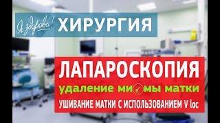 Лапароскопия  Удаление миомы матки  Ушивание матки с использованием V loc(, 2016-03-16T11:07:00.000Z)