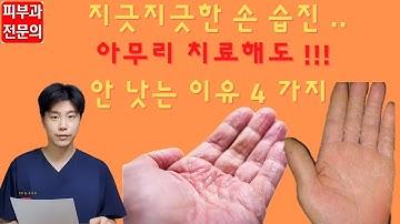 [손 습진] 생활 속 관리법