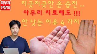 [손 습진] 생활 속 관리법 '4 가지'…