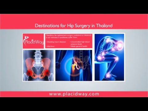 Hip Surgery in Thailand: Best Destinations for Orthopedic Procedures