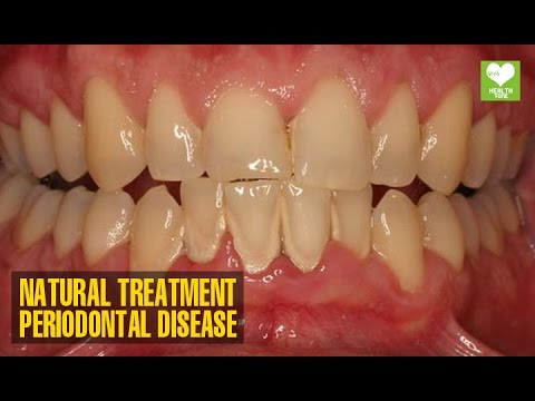 Periodontal (Gum) Disease - How To Cure Naturally | Health Tips | Education