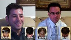 Permanent Hair Transplant Surgery Cost In Lompoc, California