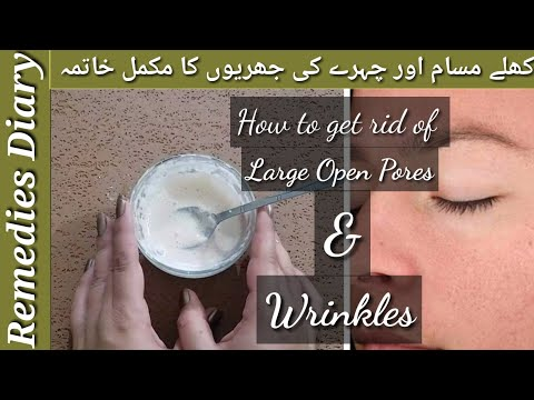 face-mask-to-remove-open-pores-from-face-and-skin-tightening--best-anti-wrinkle-homemade-mask
