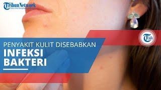 TRIBUN-VIDEO.COM - Seorang ibu asal Pekanbaru, Riau idap penyakit aneh dan kondisinya memprihatinkan.
